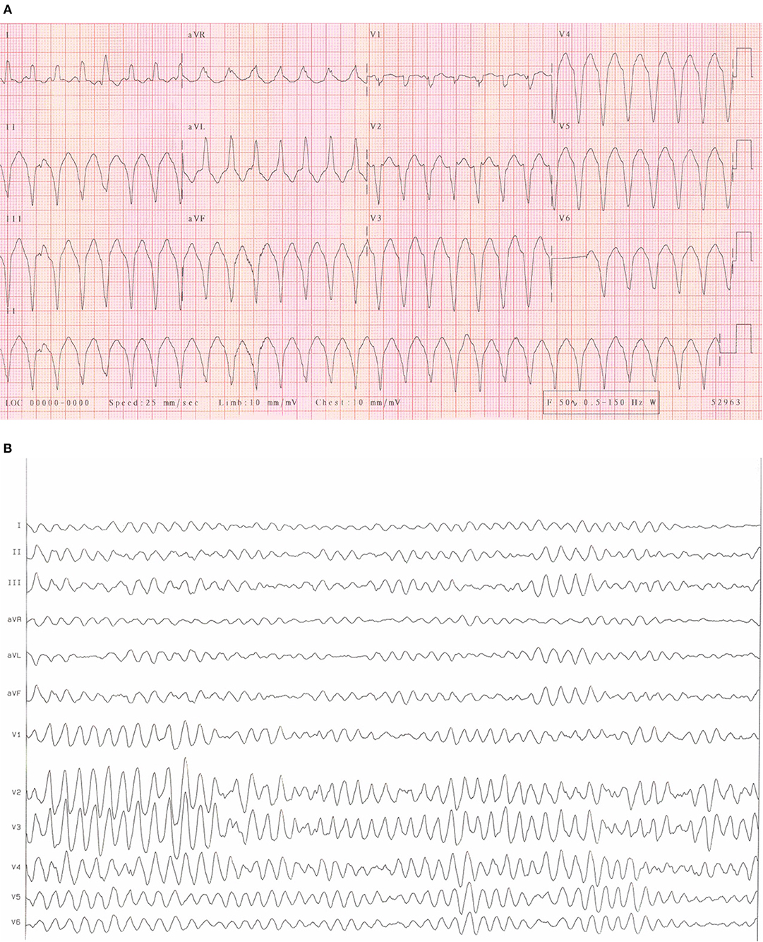 Frontiers | Arrhythmic Burden and Outcomes in Pulmonary