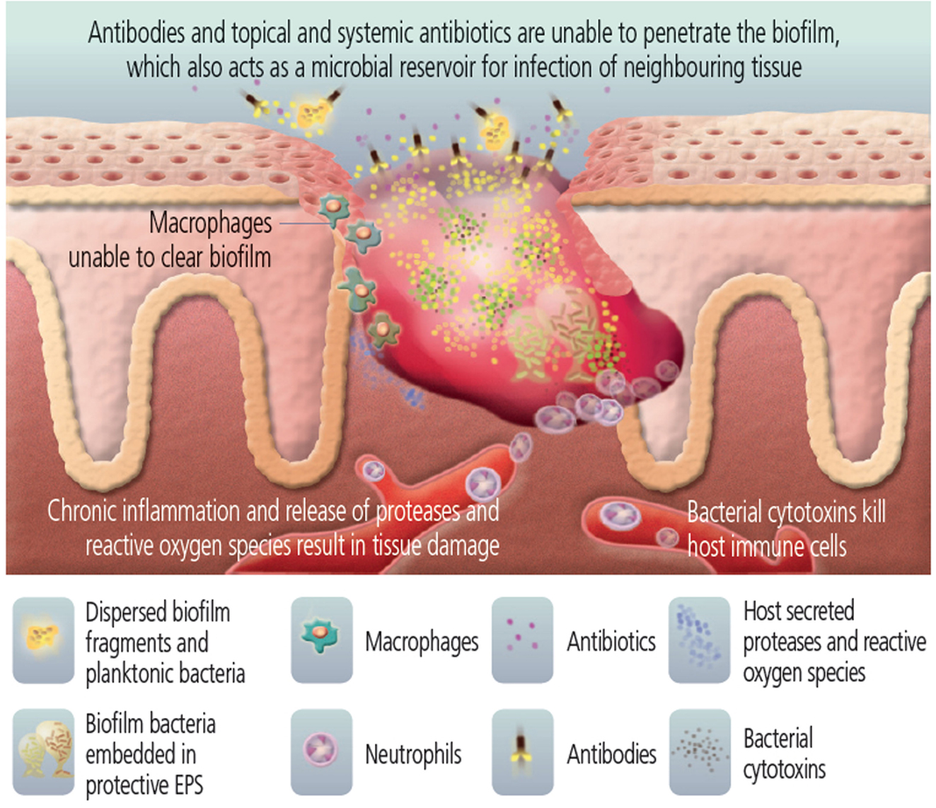 The role of bacterial biofilms in chronic infections.