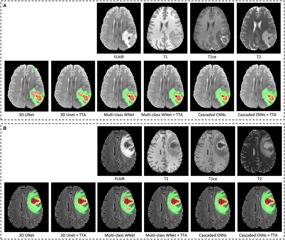 Frontiers | Automatic Brain Tumor Segmentation Based on