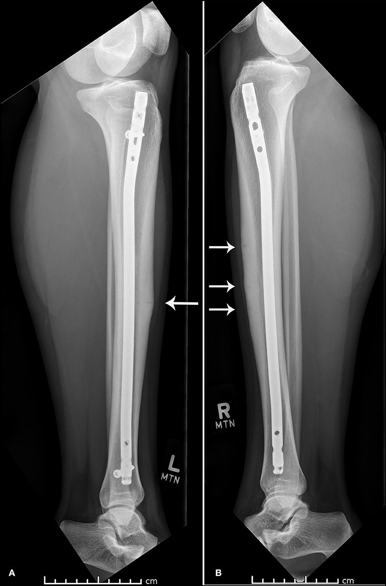 Frontiers Concurrent Bilateral Anterior Tibial Stress Fractures And Vitamin D Deficiency In An Adolescent Female Athlete Treatment With Early Surgical Intervention Pediatrics