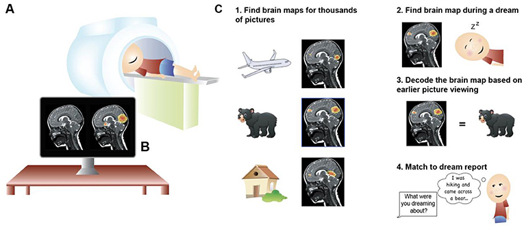 Figure 1 - (A) Magnetic resonance imaging (MRI) is a way to investigate the brain.