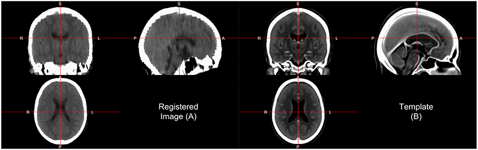 Frontiers | Recommendations for Processing Head CT Data