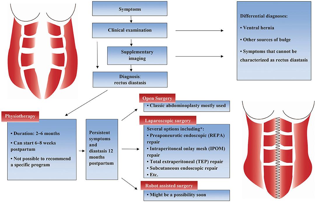 Frontiers Treatment Options For Abdominal Rectus Diastasis Surgery