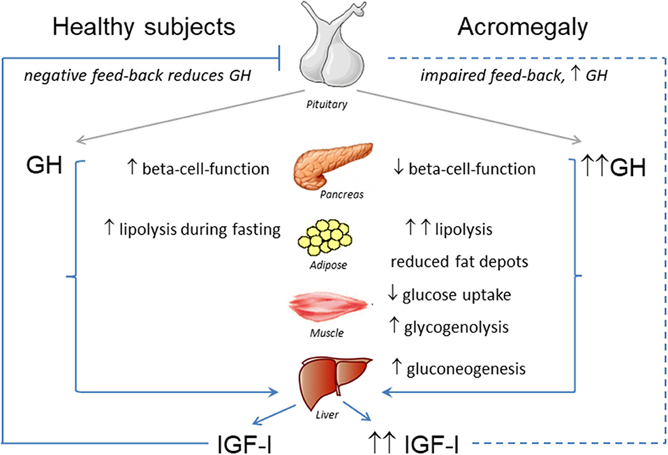 Frontiers Insulin Resistance In Patients With Acromegaly Endocrinology