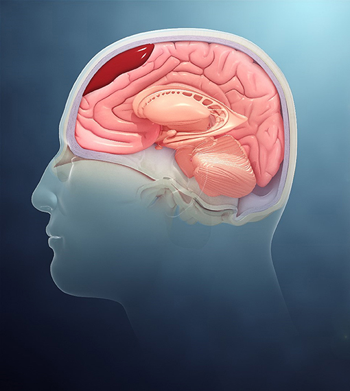 Figure 2 - Some TBIs result in a buildup of blood inside the skull, which can be very dangerous (Scientific Animations Inc. https://commons.wikimedia.org/wiki/File:Types_of_Intracranial_hematoma.jpg, Cropped by the authors to show subdural hematoma, https://creativecommons.org/licenses/by-sa/4.0/legalcode).