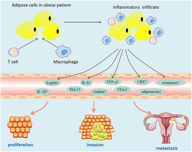 endometrial cancer obesity