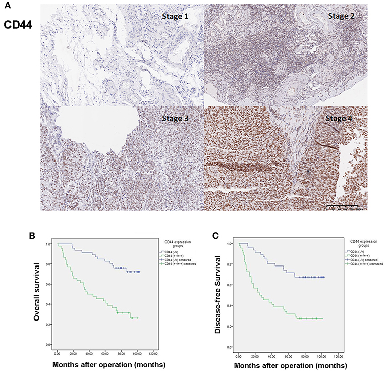 Frontiers Cd44 Expression Predicts Prognosis Of Ovarian Cancer Patients Through Promoting Epithelial Mesenchymal Transition Emt By Regulating Snail Zeb1 And Caveolin 1 Oncology