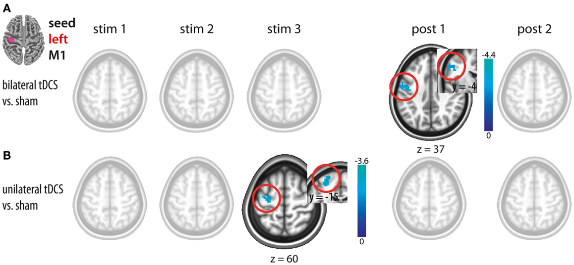 Frontiers   A Comparison between Uni- and Bilateral tDCS Effects on ...