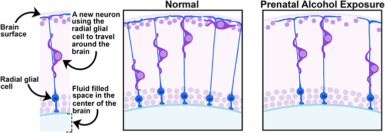 "Figure 1 - The ""Normal"" frame shows the radial glial cell (blue) extending itself toward the surface of the brain, and a migrating cell (purple) using the radial glial cell to pull itself to its proper location."