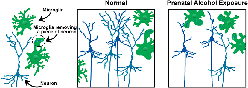 "Figure 2 - In the ""Normal"" frame, the microglia (green) are getting rid of unnecessary neurons (blue)."