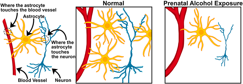 Figure 3 - Under normal conditions, multiple astrocytes (yellow) are connected to both blood vessels (red) and neurons (blue), providing neurons with important messages and nutrients.