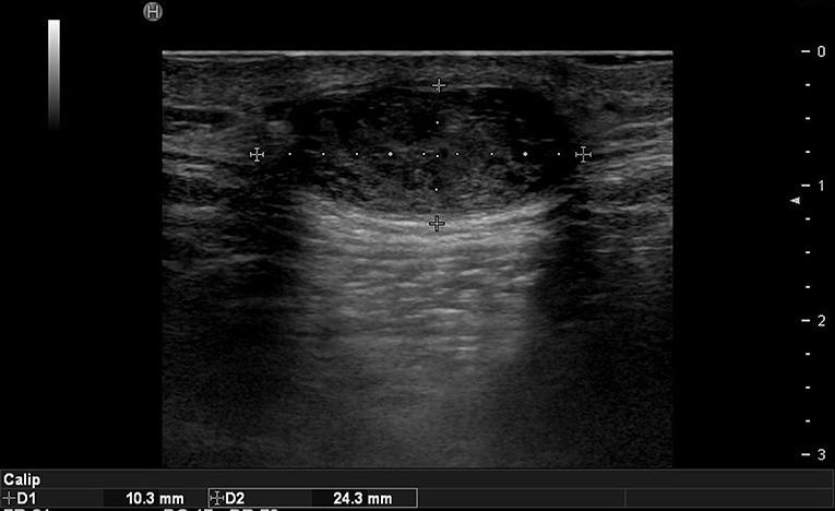 dermoid cyst forehead ultrasound لم يسبق له مثيل الصور + E-FRONTA.INFO