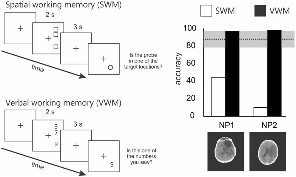 Frontiers Spatial Working Memory Deficits Represent A Core