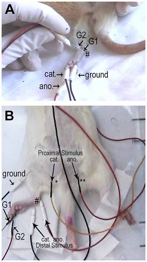 Frontiers | Sensory and Motor Conduction Velocity in