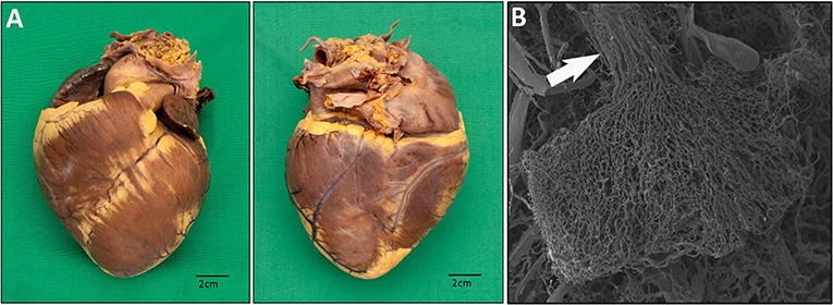 Figure 1 - (A) Heart photographs from the front (left) and the back (right)—blood runs through the heart and is pumped to the entire body.