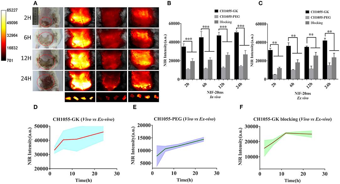 Figure S1. NIR-IIb fluorescence brightness comparison of