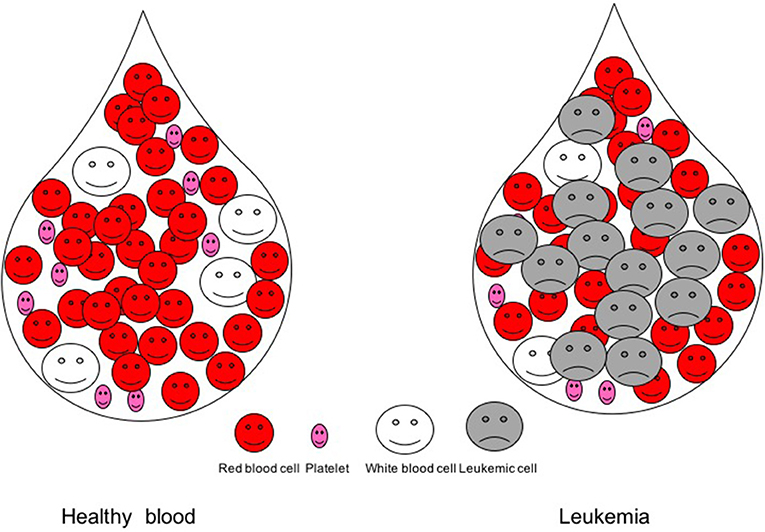 Figure 1 - Blood drop in a healthy person and in a leukemic patient.