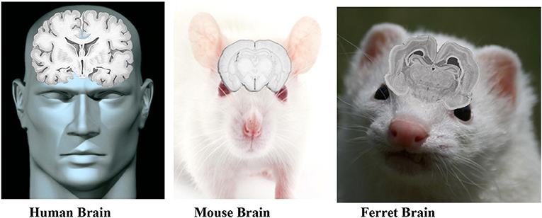Figure 1 - This figure shows the anatomy of human, ferret, and mouse brains.