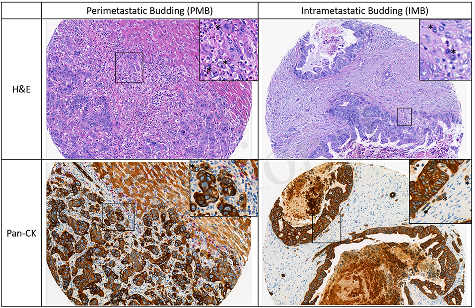 Frontiers Evaluation Of Tumor Budding In Primary Colorectal Cancer And Corresponding Liver Metastases Based On H E And Pancytokeratin Staining Medicine