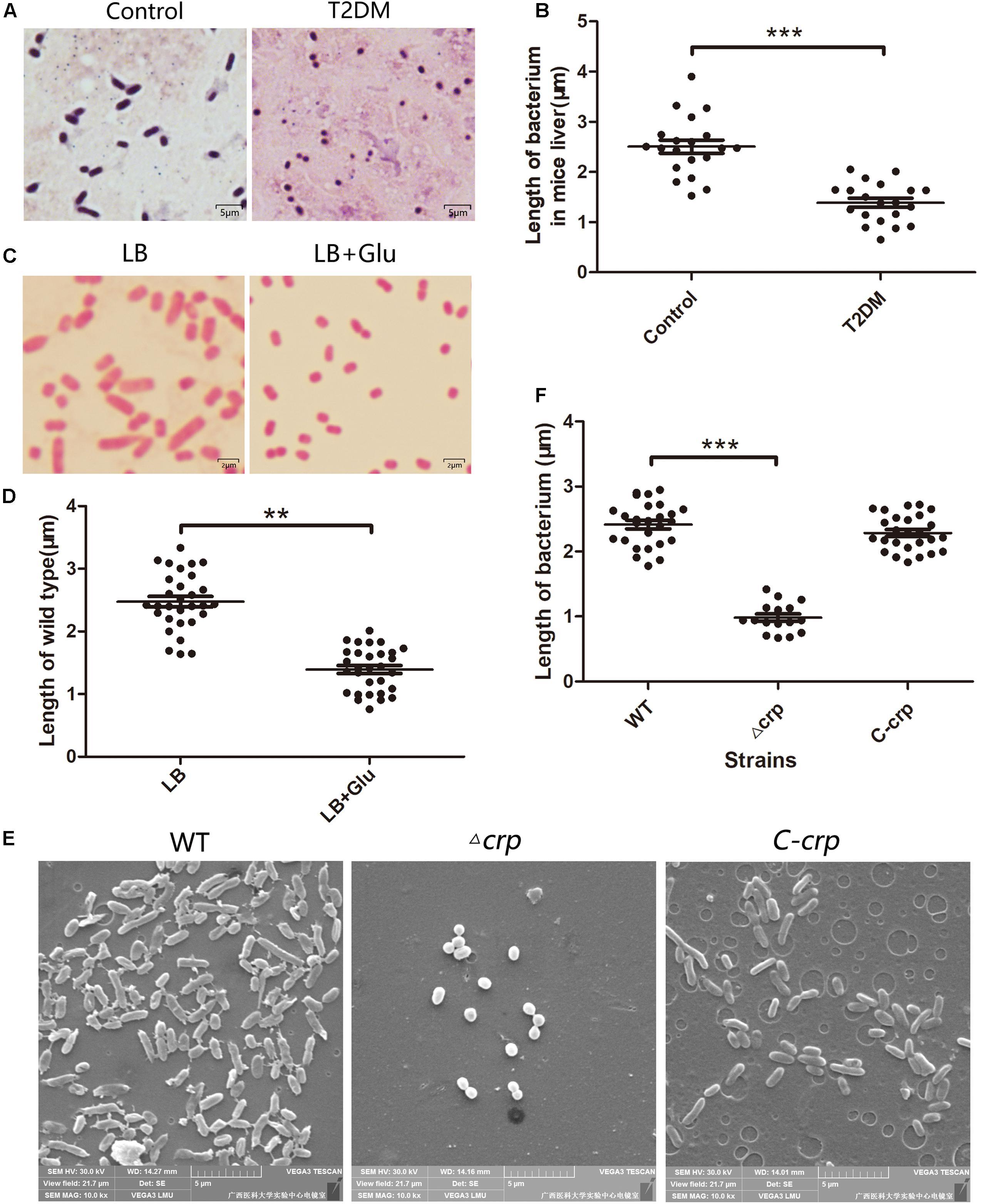 klebsiella pneumoniae toxine colposcopie condilomatică
