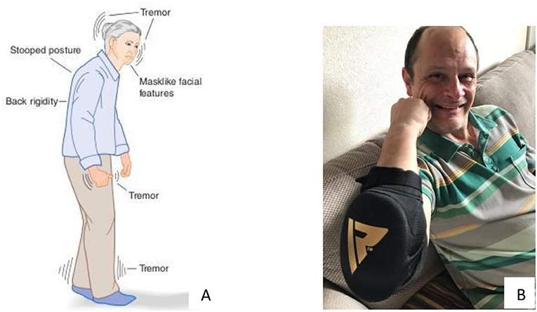 Figure 1 - (A) Symptoms of PD include body tremor, stooped posture, and muscle rigidity (from slides_google.com).