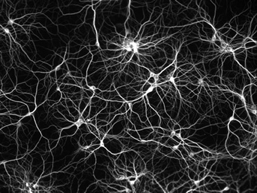 Figure 2 - Figure illustrating the very large number of connections between neurons.