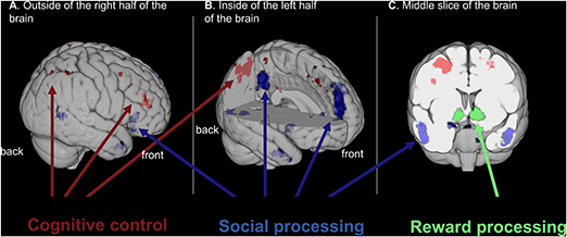 Figure 2 - Brain areas that participate in cognitive control, social processing and reward processing are shown from different angles.
