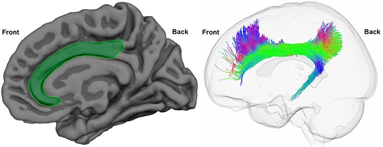 Figure 2 - The cingulate cortex and the cingulum bundle.