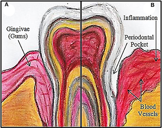Figure 1 - (A) A healthy tooth/gum.