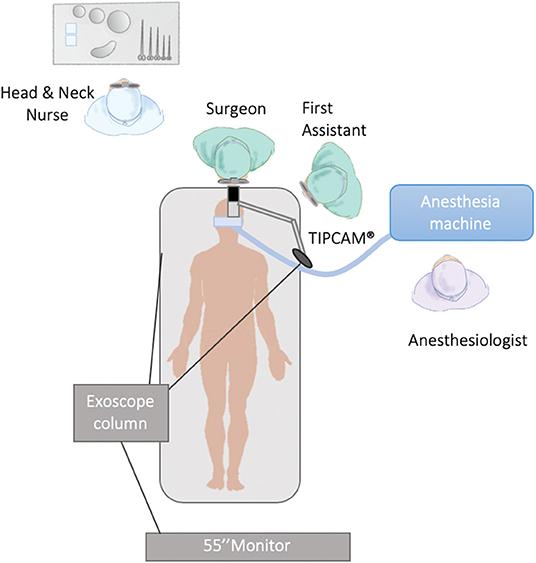 amygdale papillomavírus