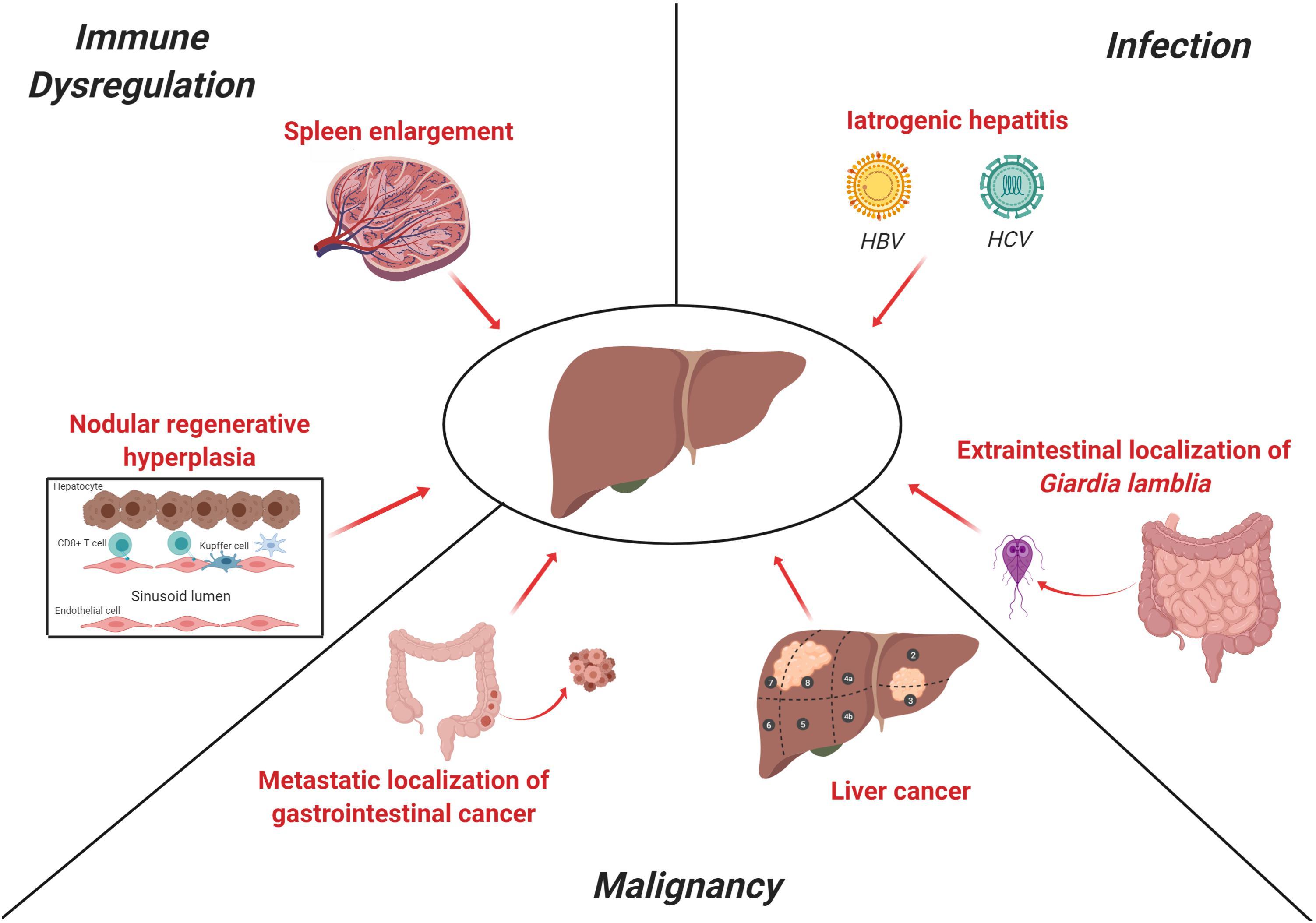 giardia liver disease)