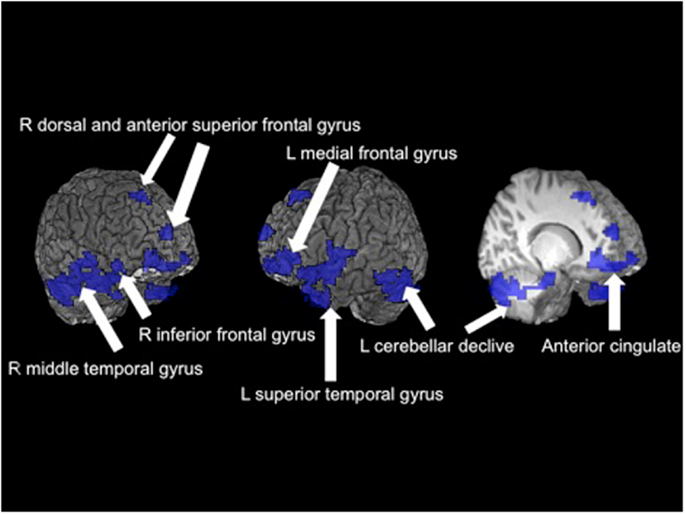 gender differences in verbal working memory On audiospatial and visuospatial working memory in  verbal and visuospatial working memory  gender differences in working memory in.