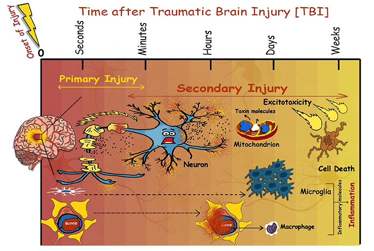 Figure 2 - Events that occur following TBI.
