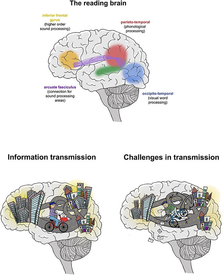 Figure 2 - The reading brain.