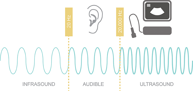 Figure 1 - Different sound frequencies: infrasound has sound waves with frequencies lower than 20 Hz; audible sound, which has sound waves with frequencies between 20 and 20,000 Hz; and ultrasound, which has sound waves with frequencies >20,000 Hz.