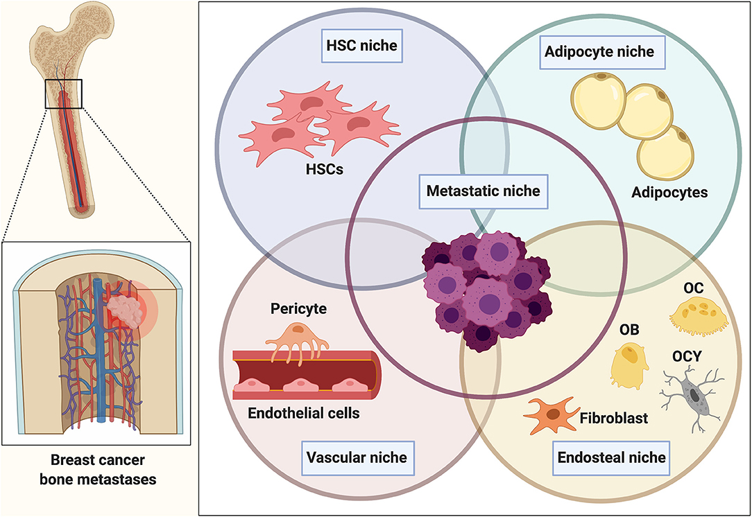 metastatic cancer and bone sucuri detoxifiere timisoara