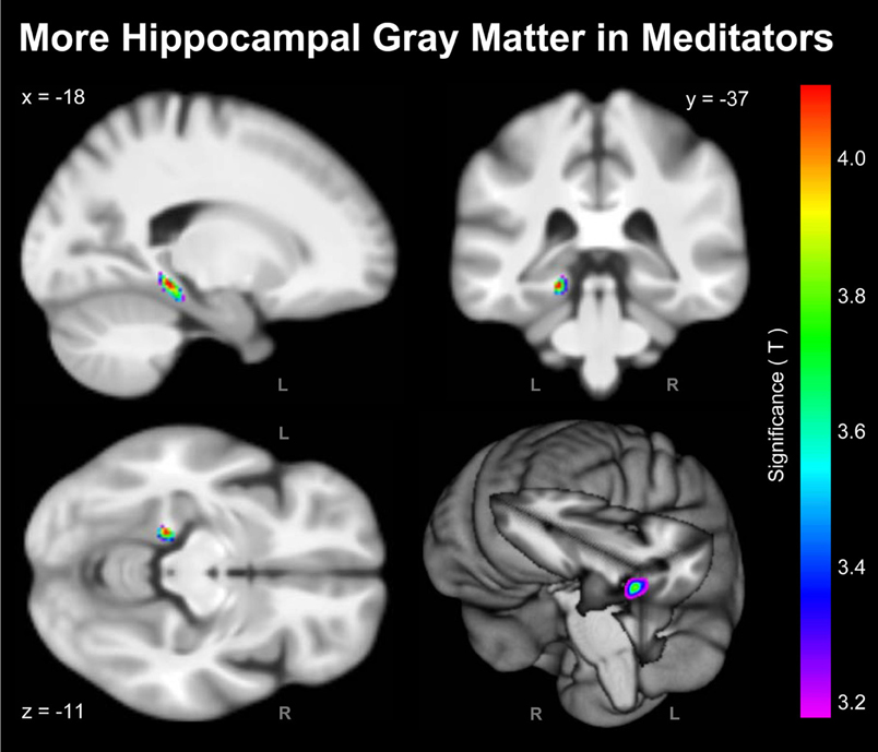 Gray Matter Density Increases During >> Frontiers Meditation Effects Within The Hippocampal Complex