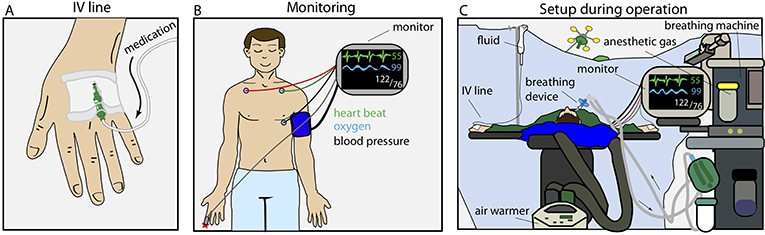 Figure 1 - Setup and monitoring during an operation.