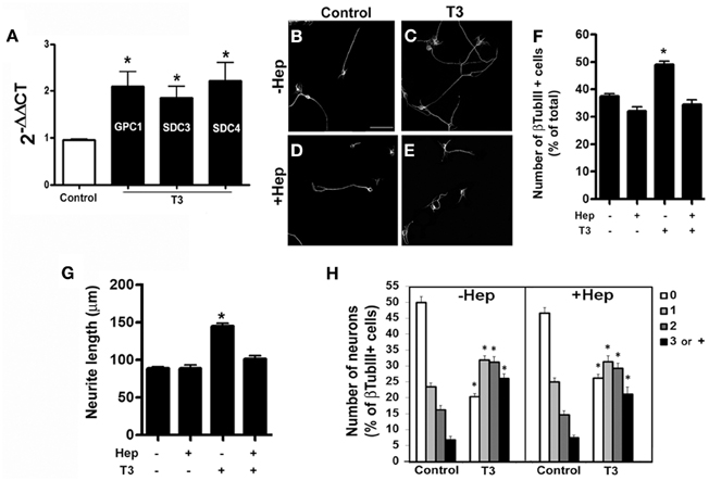 effects of thyroid hormones on cortical neuron The thyroid hormone l-3,3′,5-triiodothyronine (t3) plays an important role during cerebellar development perinatal t3 deficiency leads to severe cellular perturbations, among them a striking reduction in the growth and branching of purkinje cell dendritic arborization.