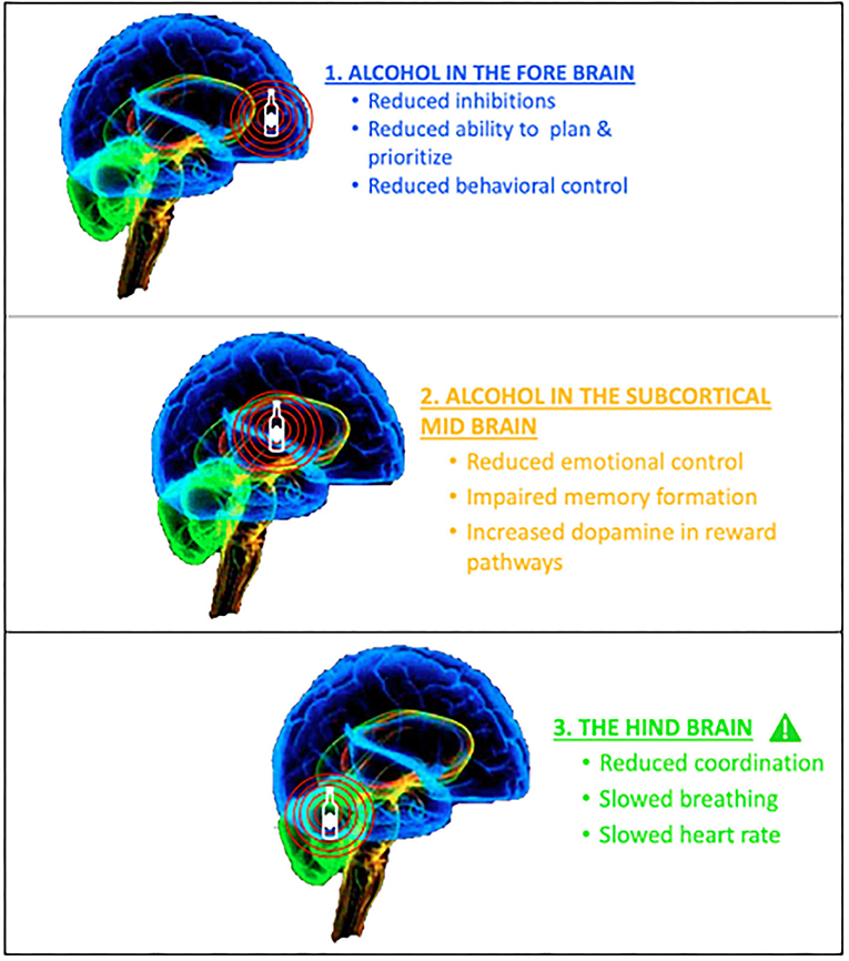Figure 2 - Alcohol intoxication affects brain activity.