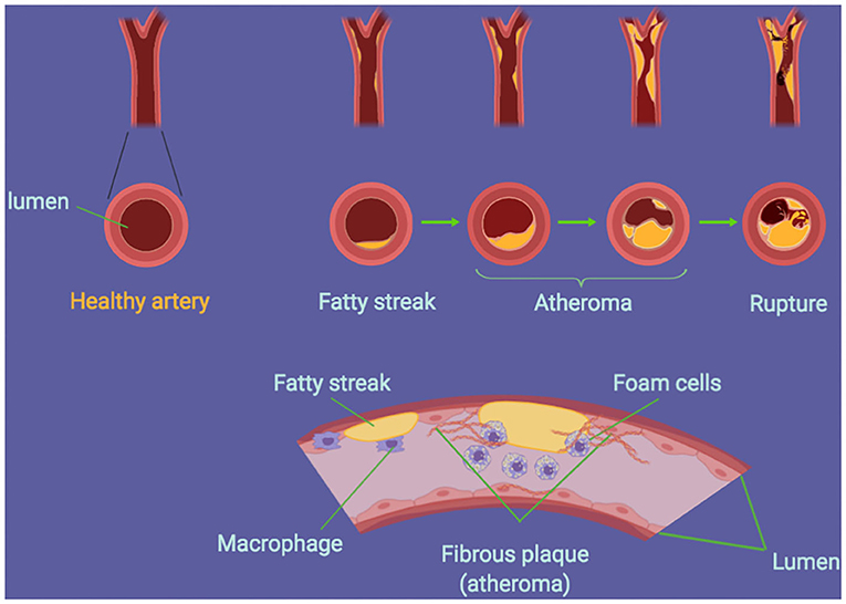 Figure 1 - How an atheroma is established in the arteries.