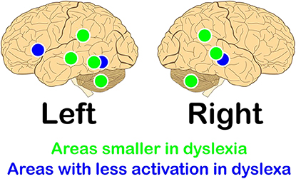 Figure 2 - Areas in green indicate regions of the brain that several studies have shown to be smaller in people with dyslexia [3].