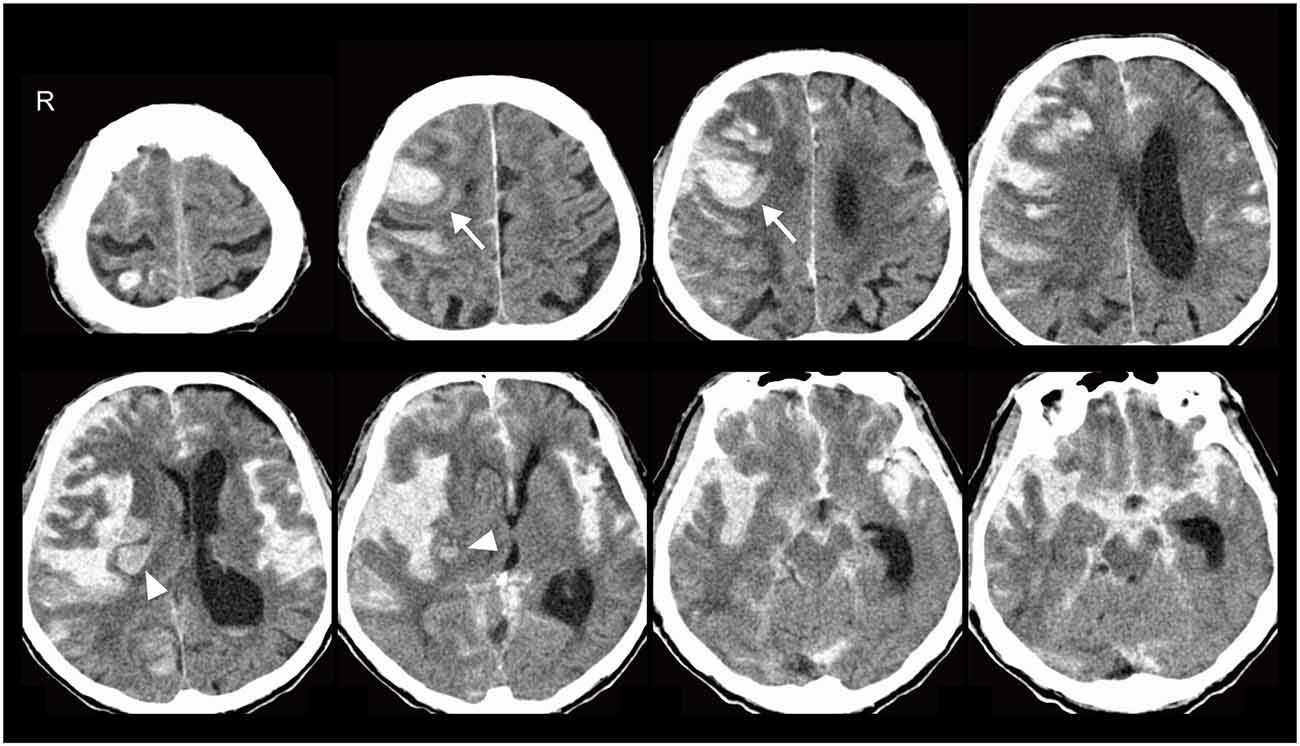 Frontiers | Cerebral Amyloid Angiopathy Presenting as ...