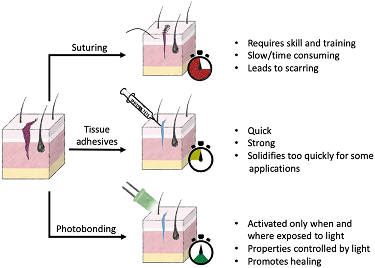 Figure 1 - Currently available options for wound closure and healing include suturing, tissue adhesives, and photobonding.