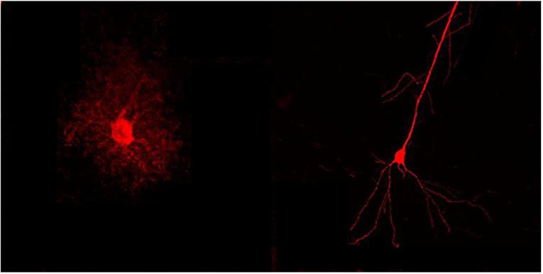 Figure 1 - Nerve cell vs. astrocyte.