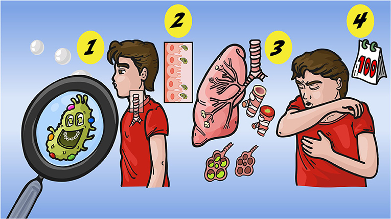 Figure 1 - The different phases of whooping cough.