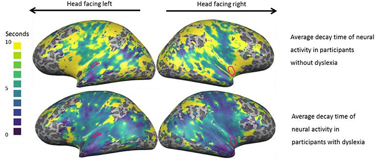 איור 1 - זיכרון לצלילים דועך מהר יותר בקרב אנשים עם דיסלקסיה מאשר בקרב אנשים ללא דיסלקסיה.