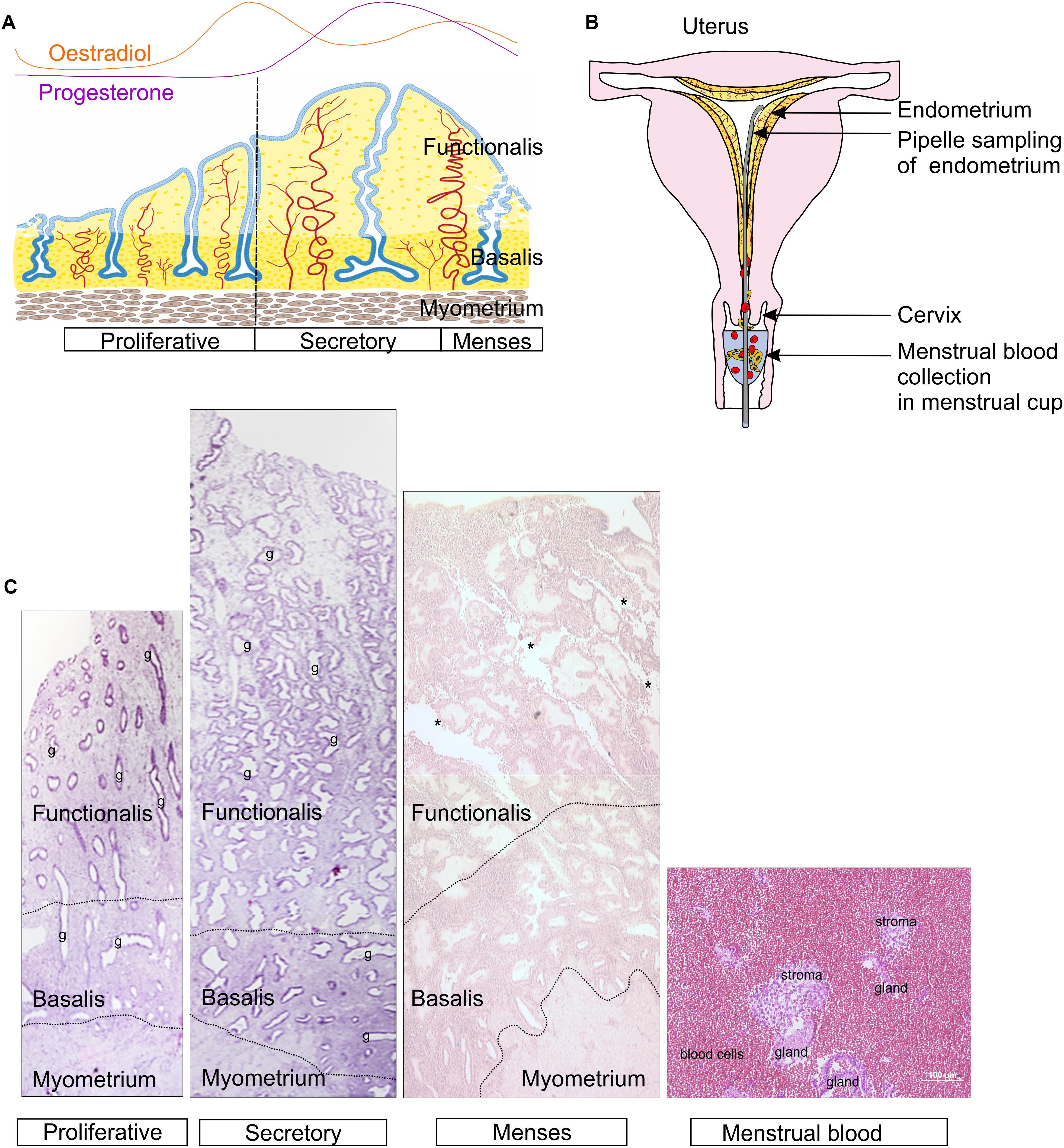 endometrium rák Hong Kong