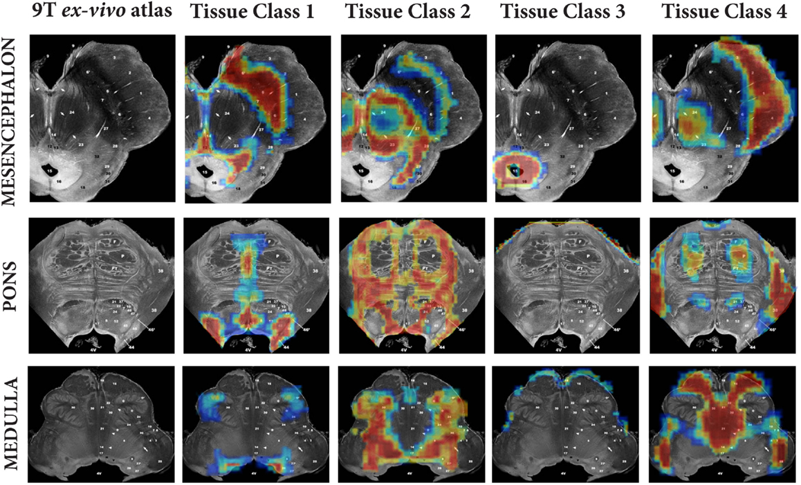 Frontiers | Characterizing Aging in the Human Brainstem Using ...