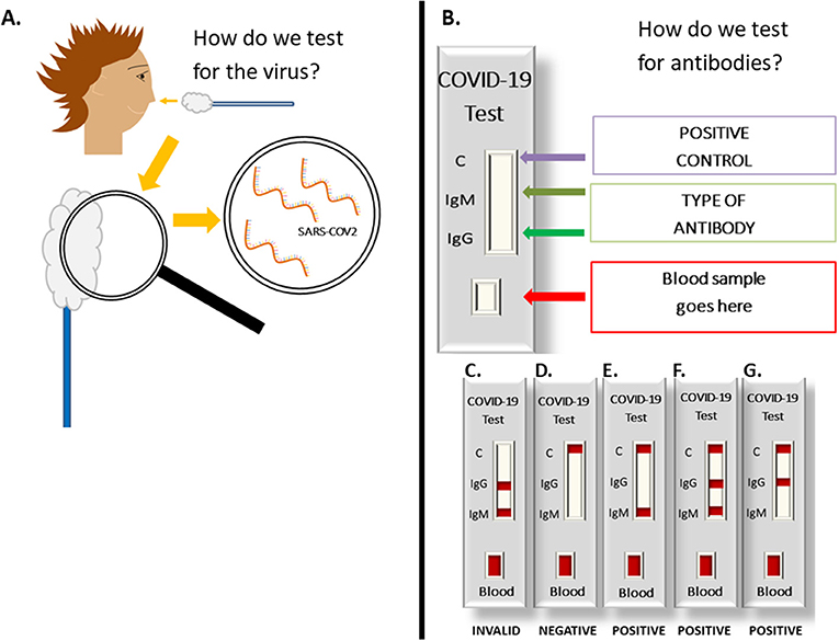 Figure 3 - How does a coronavirus test work? (A) How do we test for the virus?: A small sample of fluid is collected from the nose with a swab, and then the medical team looks for the genetic sequence of SARS-CoV-2 in the sample.
